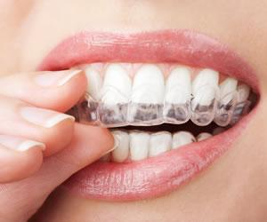 Diş Beyazlatma Jeli Onikibilgicom