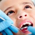 Diş Çürümesi Nedenleri