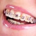 Diş Teli Ücretleri