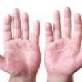 Ellerde Deri Dökülmesi Nedenleri
