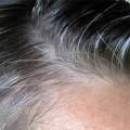 Saç Beyazlamasına Bitkisel Çözüm