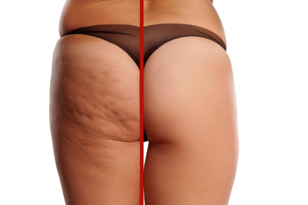Selülitli ve selülitsiz bacağın arasındaki görünüm farkı
