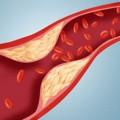 Yüksek Kolesterolün Etkileri
